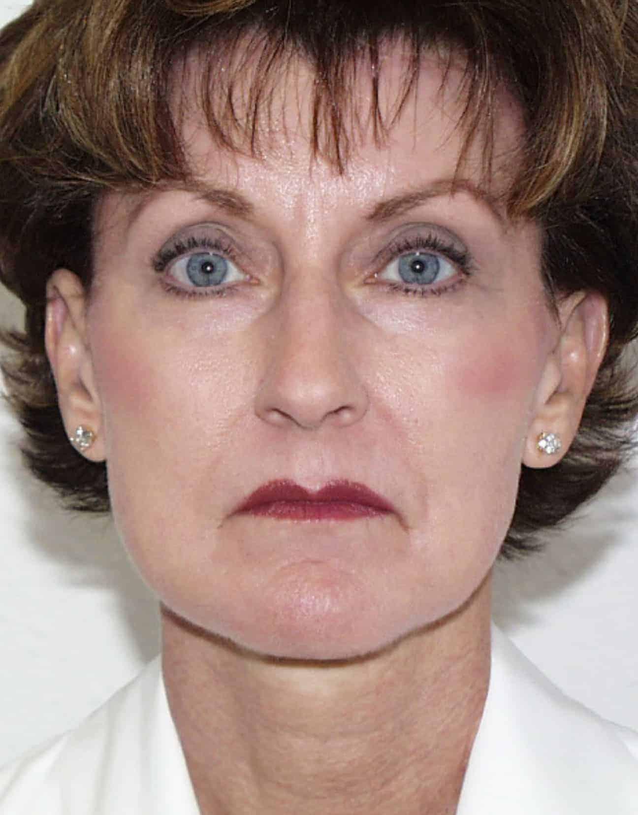 cortez facial plastic surgery facelift front after