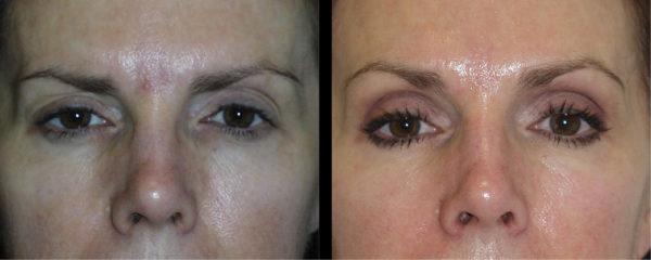 cortez facial plastic surgery brow 1