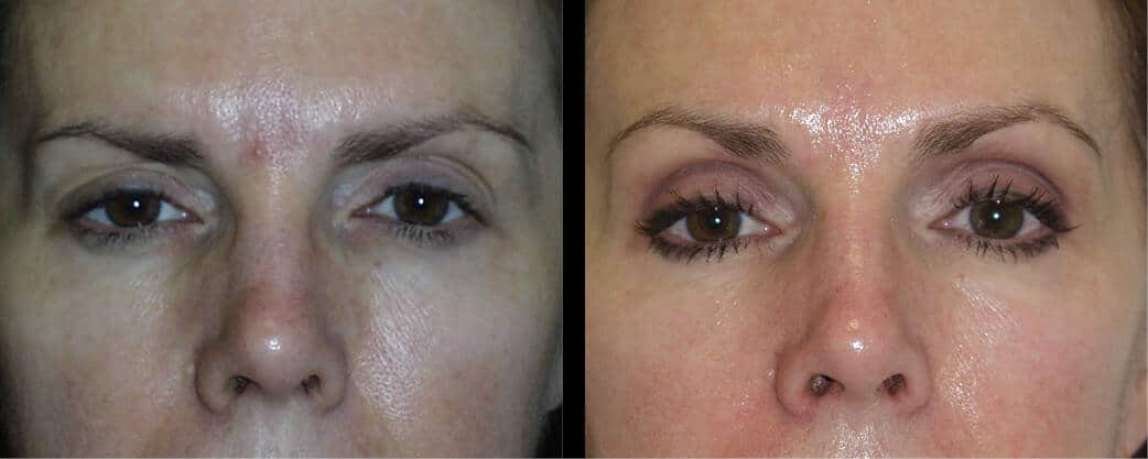 cortez facial plastic surgery brow 1