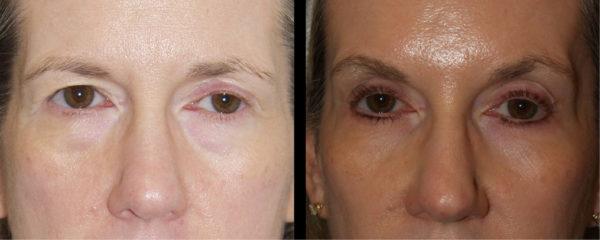 cortez facial plastic surgery brow 2