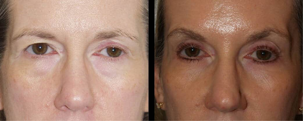 cortez facial plastic surgery brow 2