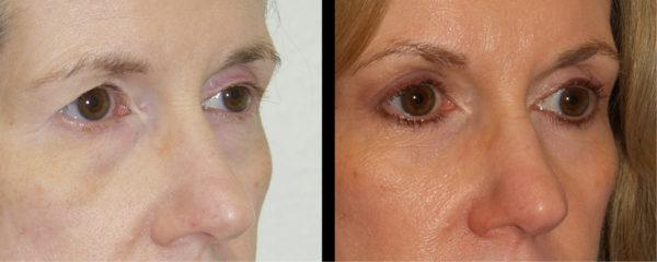 cortez facial plastic surgery brow 3