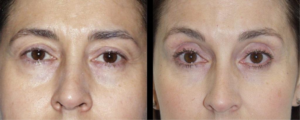 cortez facial plastic surgery brow 4