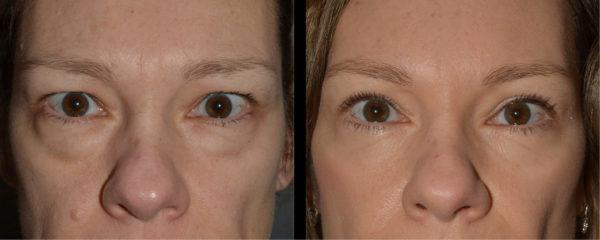 cortez facial plastic surgery brow 5