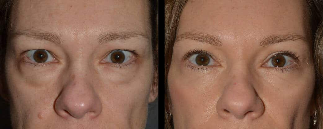 cortez facial plastic surgery brow 5