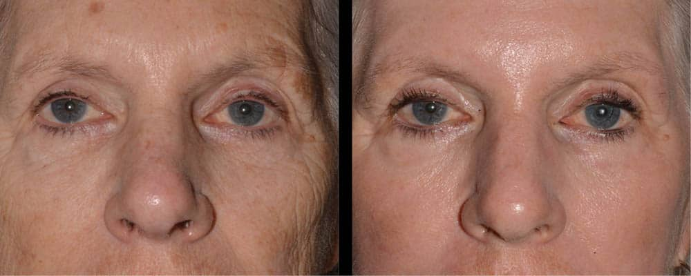 cortez facial plastic surgery brow lift bilateral ptsosis lower blepharoplasty