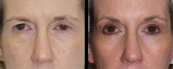 cortez facial plastic surgery eyelift 1