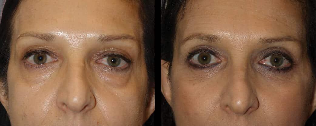 cortez facial plastic surgery eyelift 2