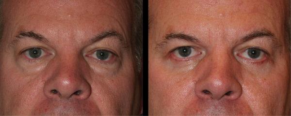 cortez facial plastic surgery eyelift 3