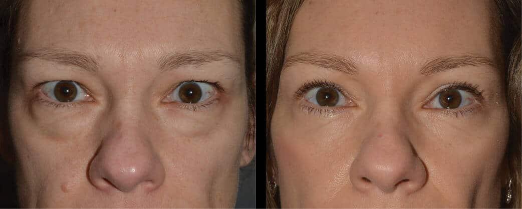 cortez facial plastic surgery eyelift 5