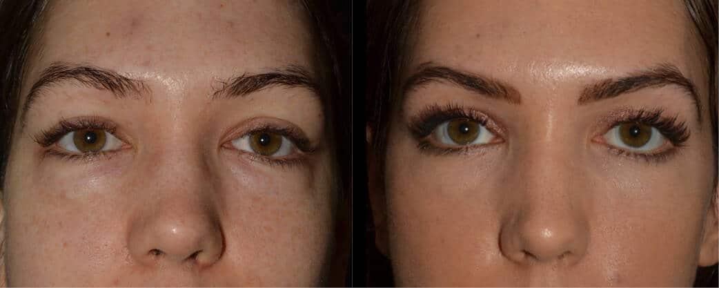 cortez facial plastic surgery eyelift 6
