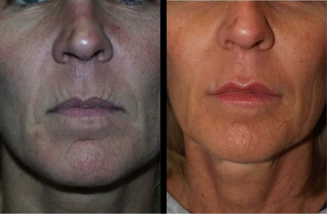 cortez facial plastic surgery filler injections 1