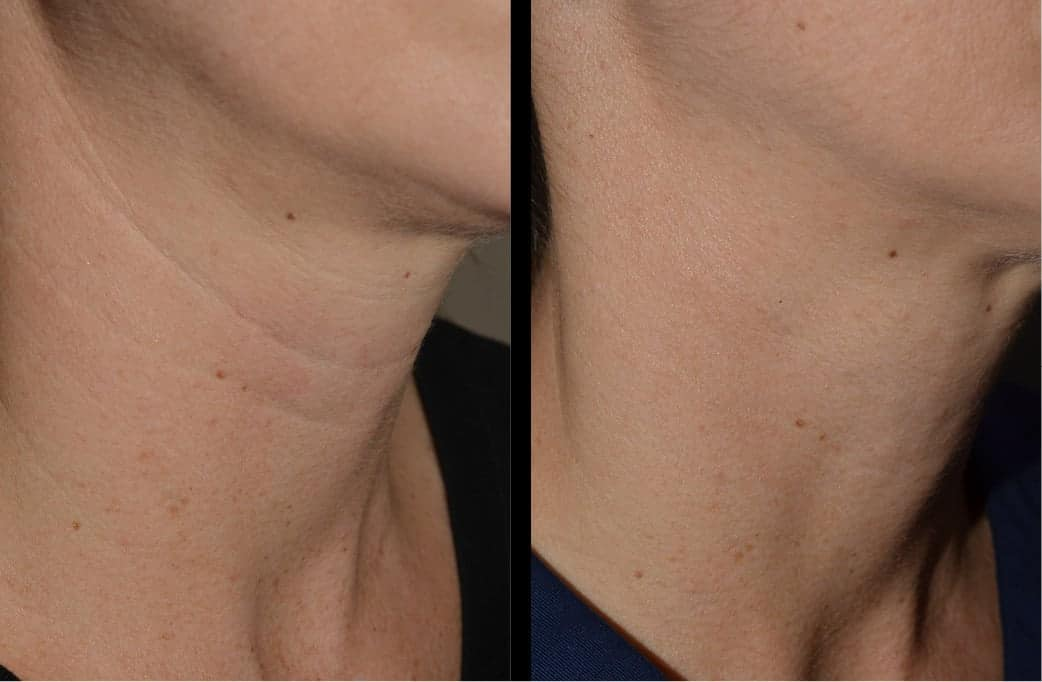 cortez facial plastic surgery filler injections 3