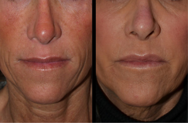 cortez facial plastic surgery filler injections 5