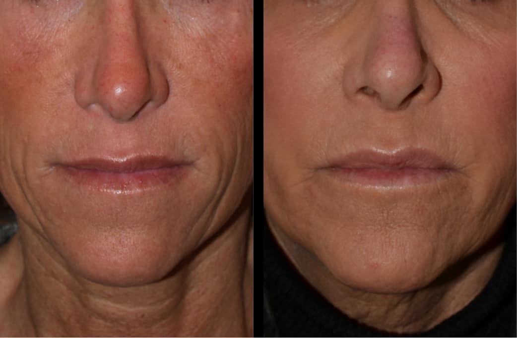 cortez facial plastic surgery filler injections 5