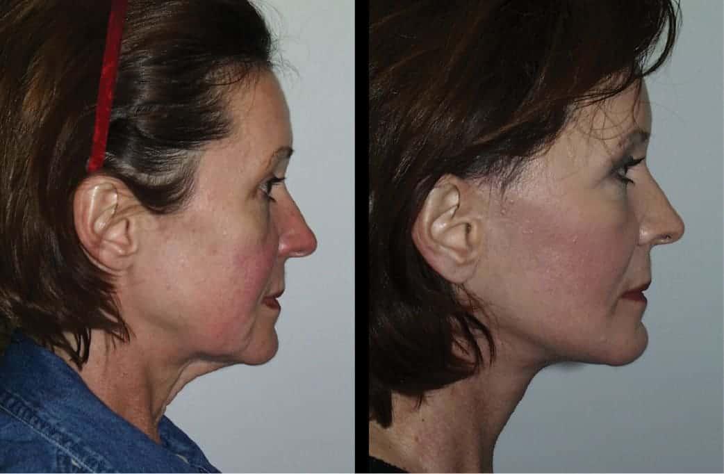 cortez facial plastic surgery prejowl chin implants 1