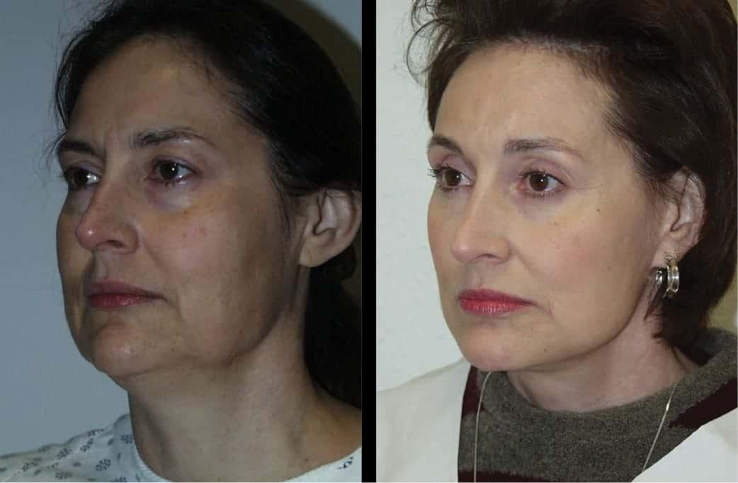 cortez facial plastic surgery prejowl chin implants 2