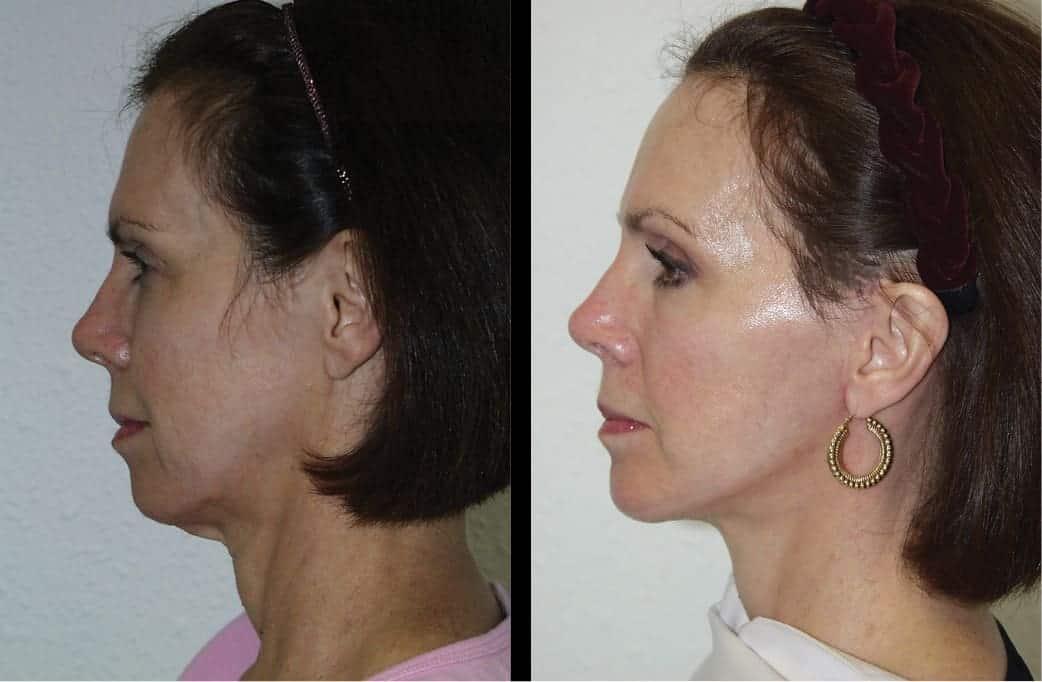 cortez facial plastic surgery prejowl chin implants 3