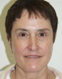 cortez facial plastic surgery facelift3a front after