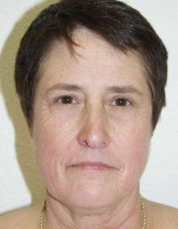 cortez facial plastic surgery facelift front before
