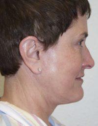 cortez facial plastic surgery facelift3a profile after