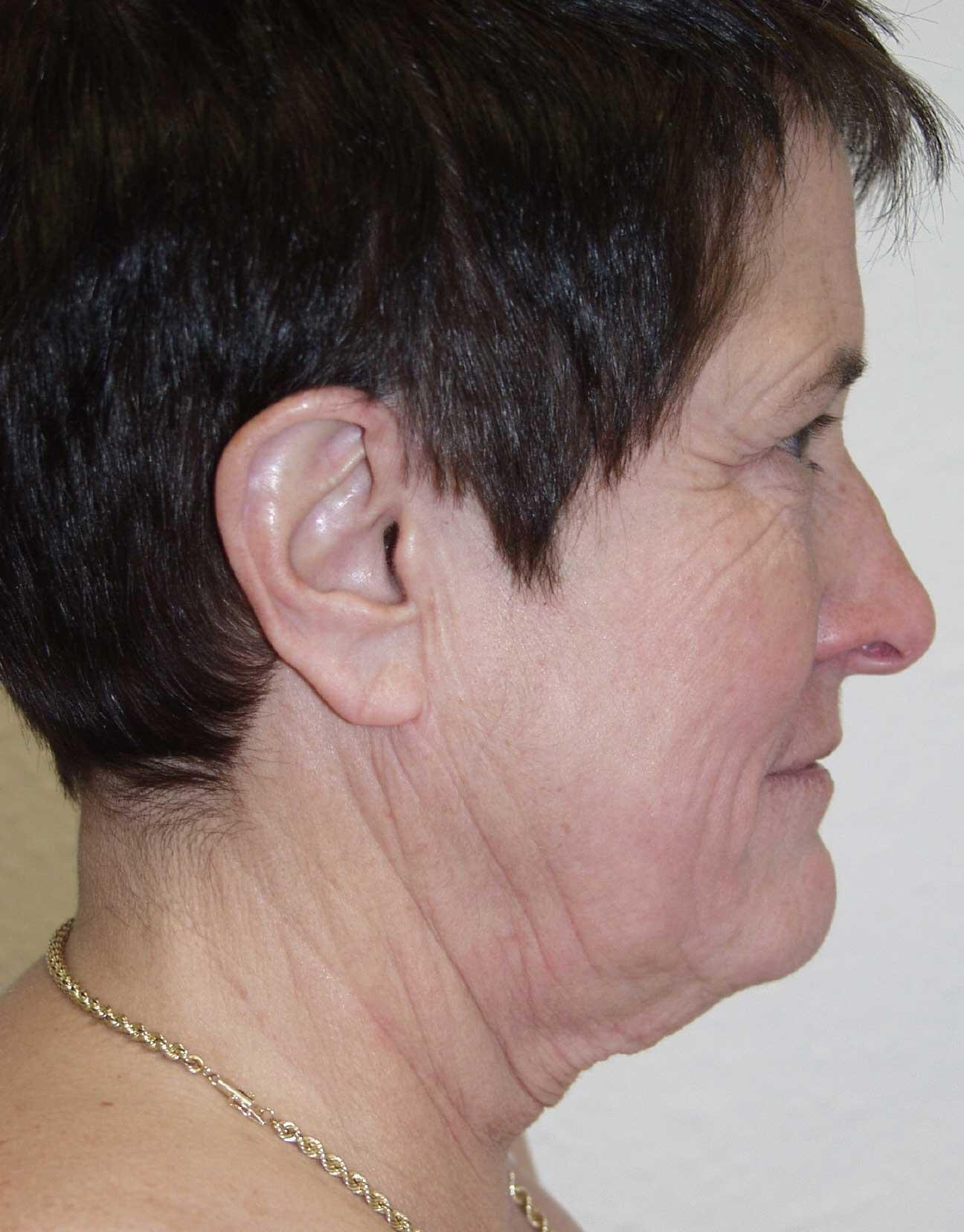 cortez facial plastic surgery facelift3a profile before