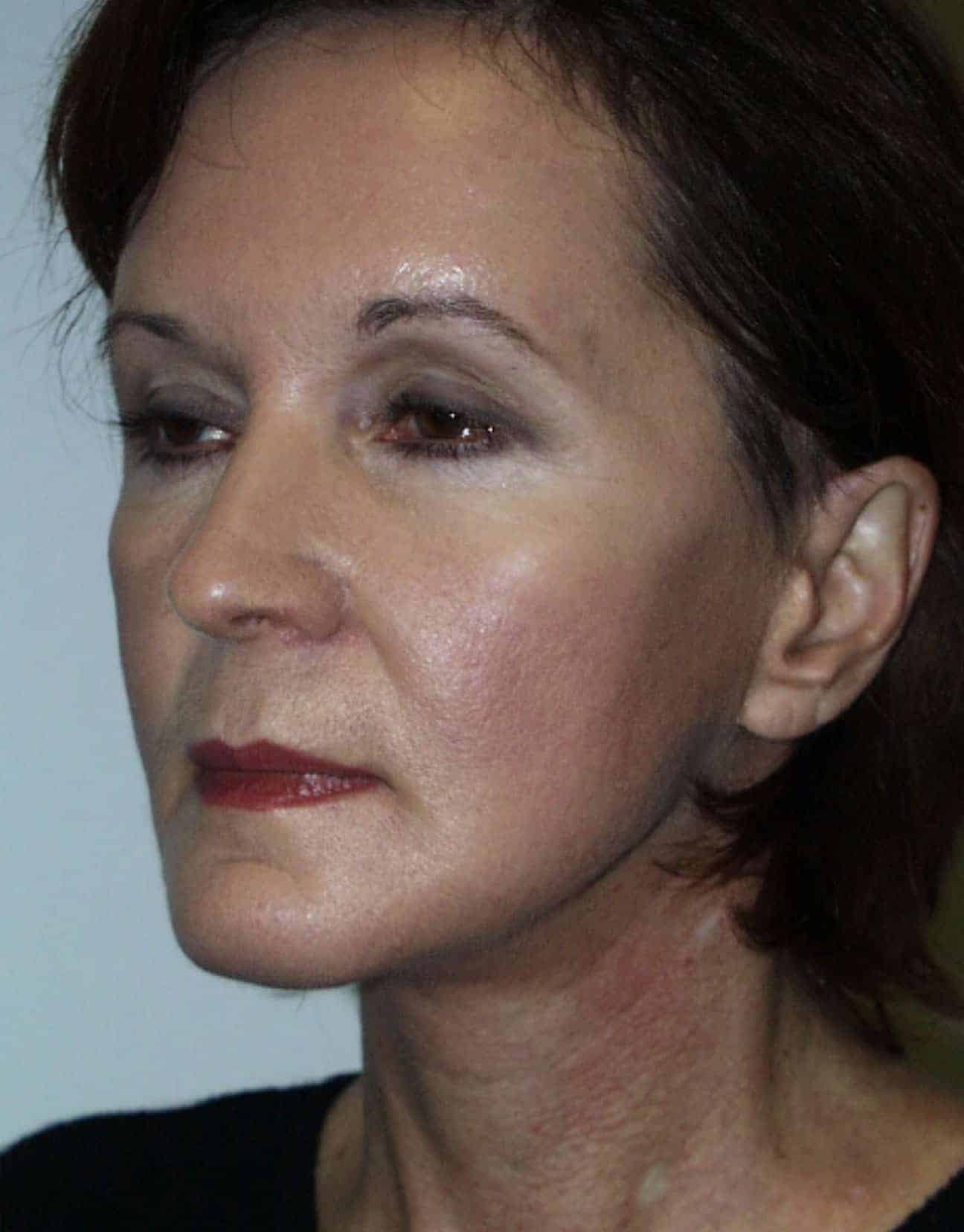 cortez facial plastic surgery facelift angle after