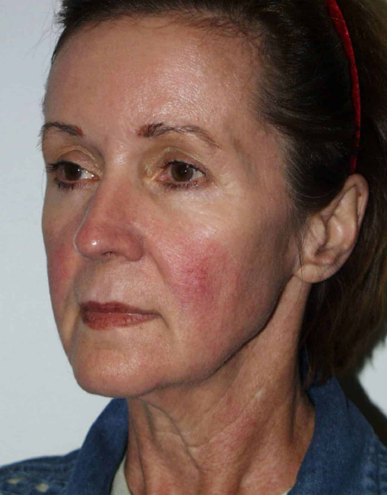 cortez facial plastic surgery facelift angle before