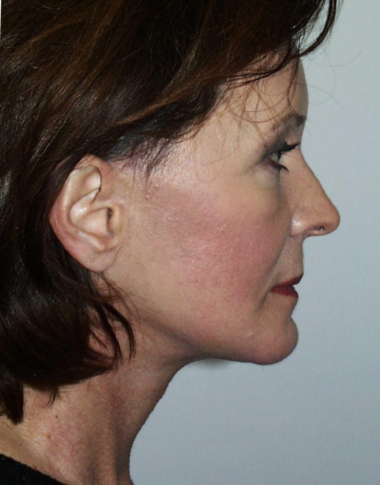 facelift FL profile after