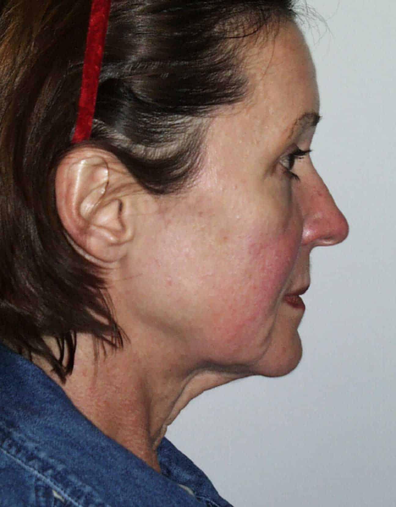 cortez facial plastic surgery facelift profile before