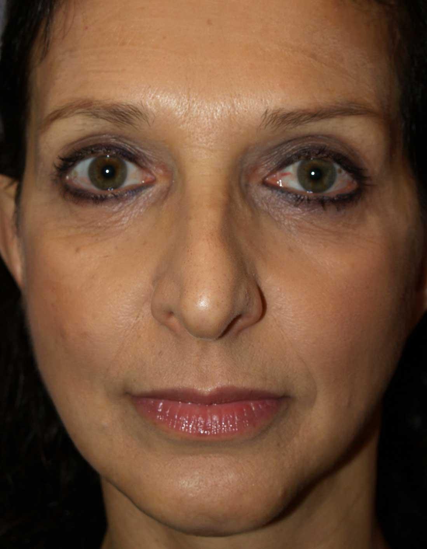 cortez facial plastic surgery facelift front after2