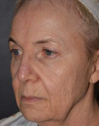 cortez facial plastic surgery pcopeel sue angle BEFORE