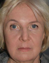 cortez facial plastic surgery pcopeel sue front AFTER