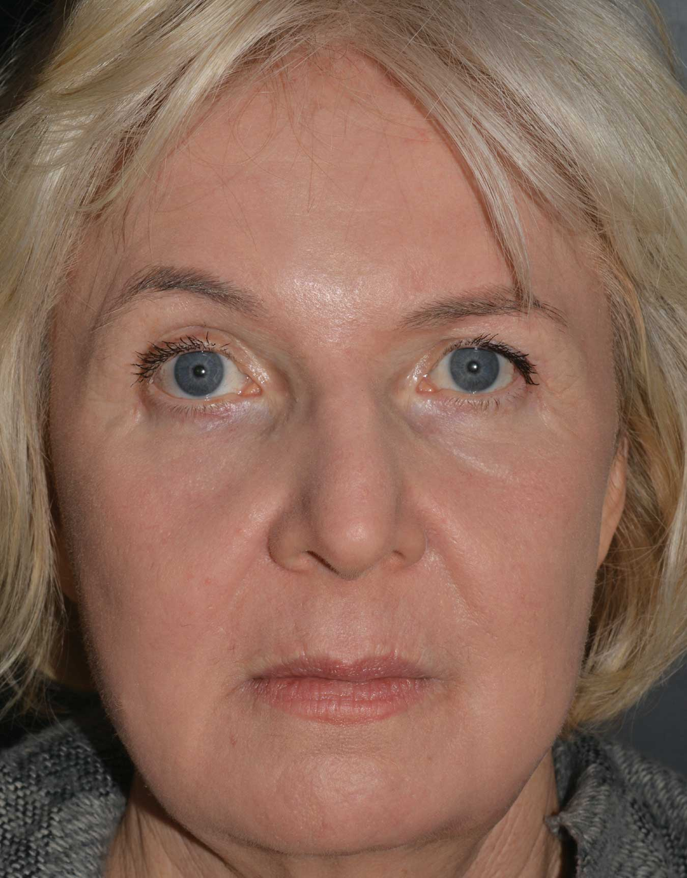 cortez facial plastic surgery pcopeel sue front AFTER