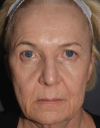 cortez facial plastic surgery pcopeel sue front BEFORE