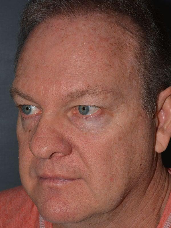 cortez eyelid forehead lift before