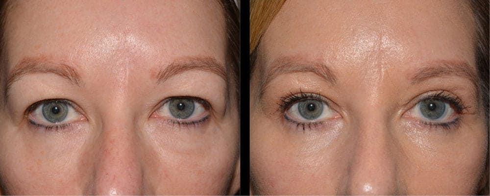 eyelid lift blepharoplasty before and after dr cortez