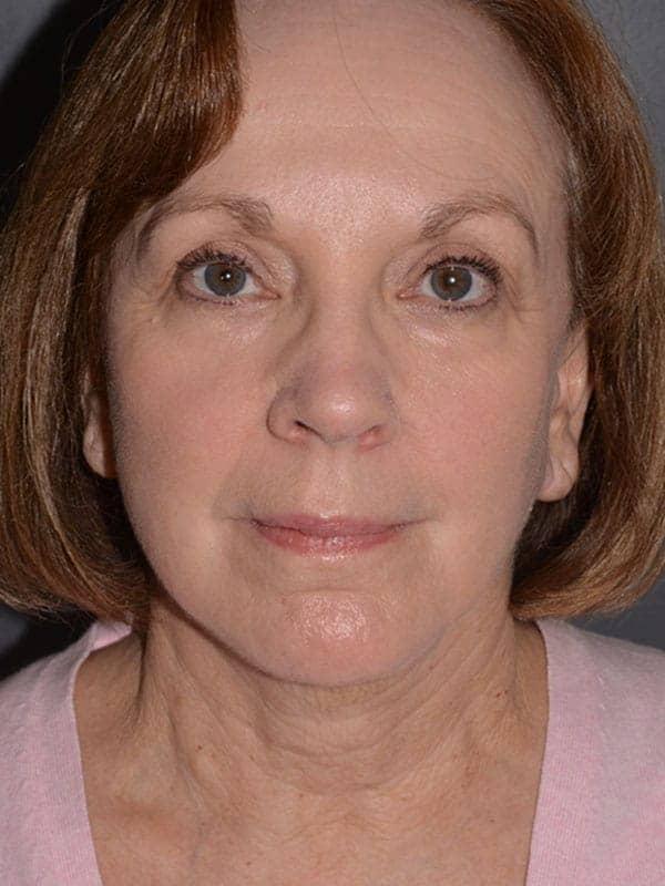 facelift after